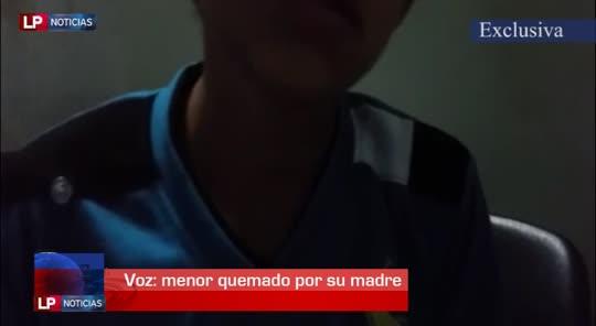 Niño narra como su madre le quemó el rostro con un tizón